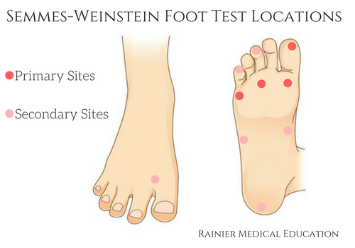 foot locations for semmes-weinstein monofilament test