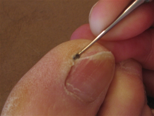 Professional Nail Clipping Techniques to Prevent Ingrown Nails