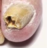 thick hollow nail