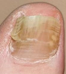 snaggable uneven nail