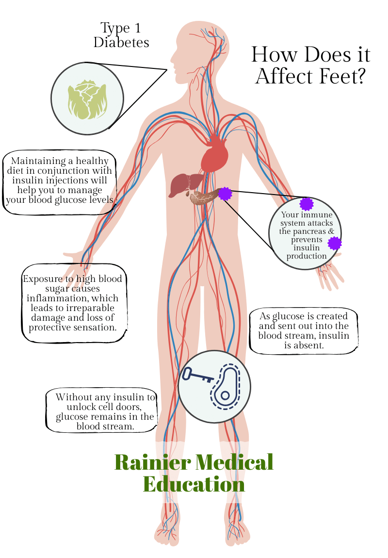 How Type 1 Diabetes Affects Diabetic Neuropathy infographic