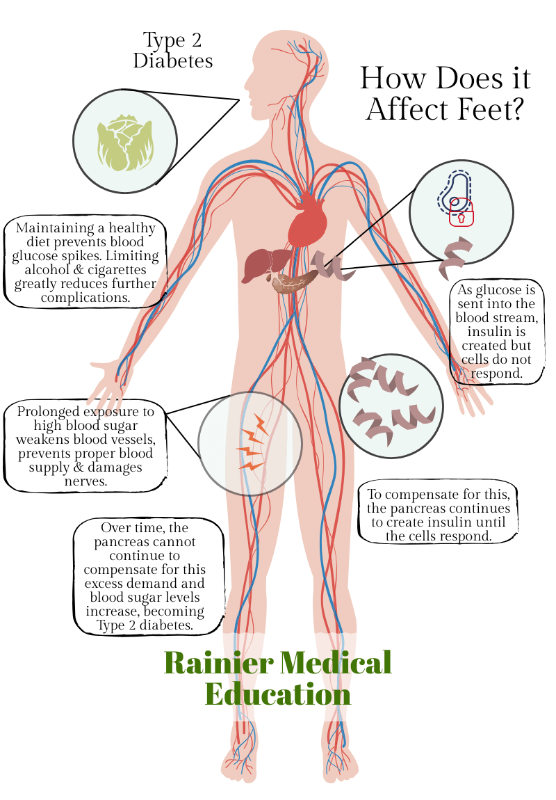 How type 2 diabetes affects diabetic neuropathy infographic